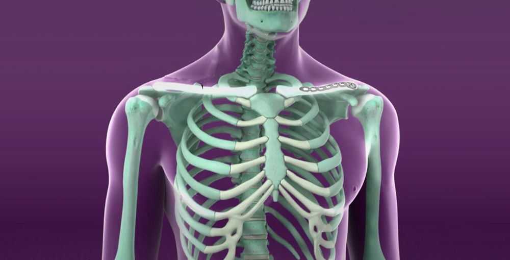 Sarcoidosis and the Joints, Muscles and Bones - SarcoidosisUK