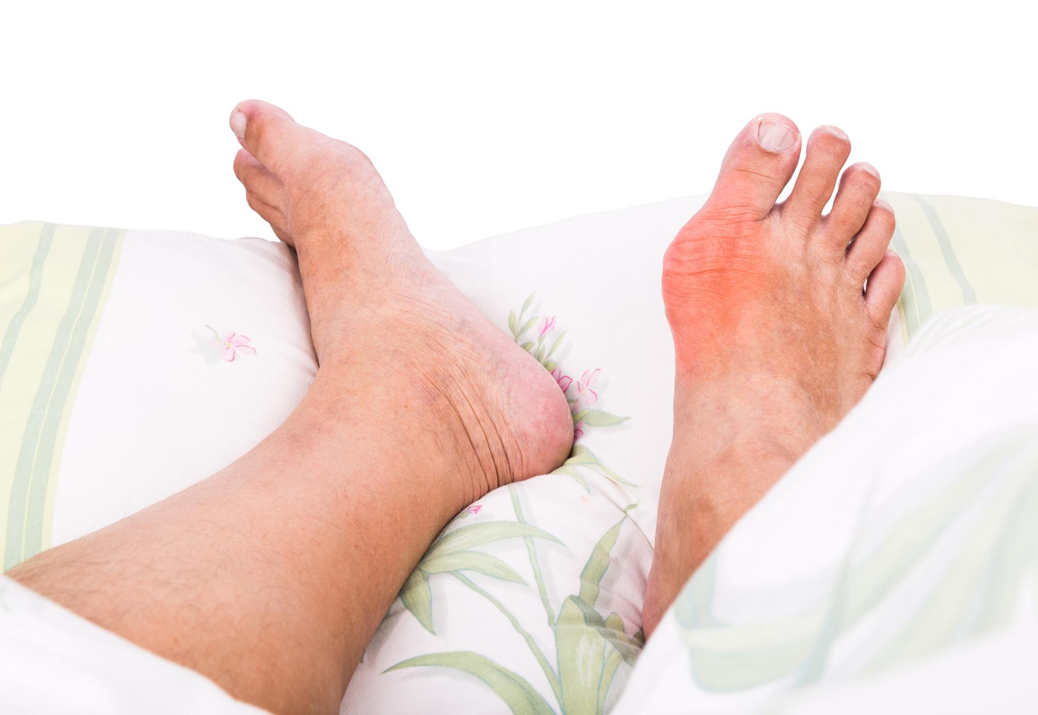 tratament guta picioare
