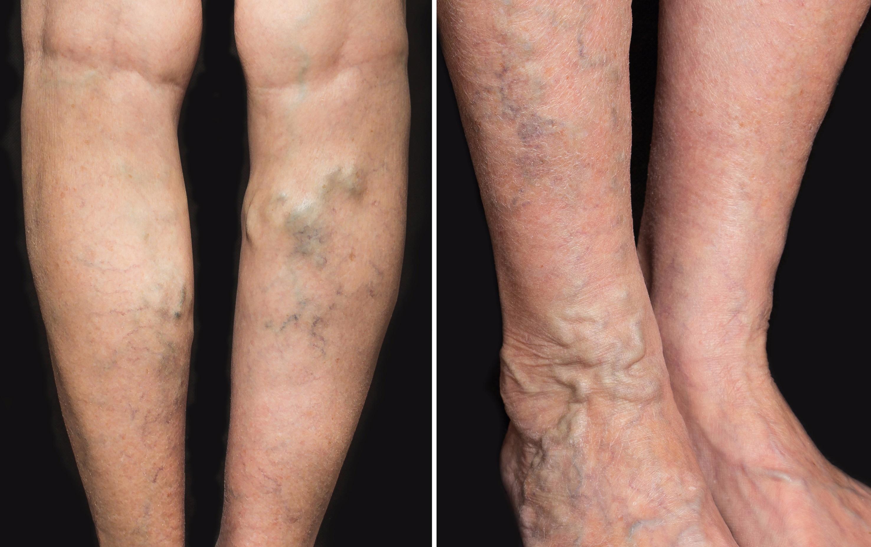 comprimate la umflături de picioare și varicoză)