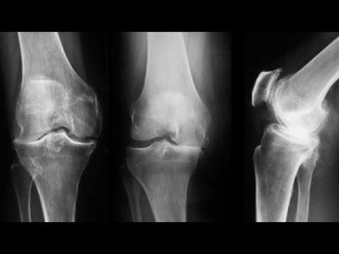 tratamentul clinic al artrozei genunchiului unguent alizon pentru articulații