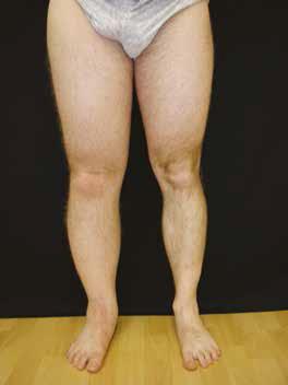 tratamentul edemului genunchiului