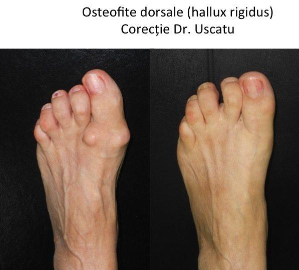 boala degenerativa a tesutului conjunctiv comprimate paracetamol dureri articulare