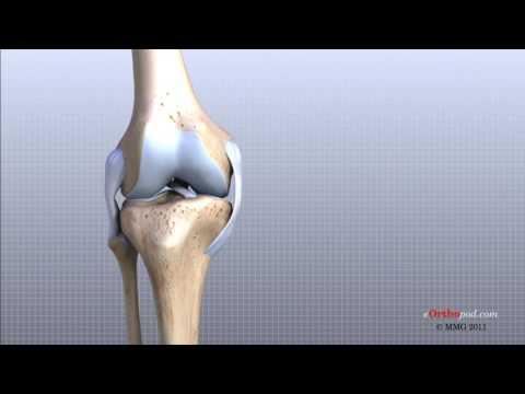 tratamentul osteoartrozei deformante a genunchiului 2 grade