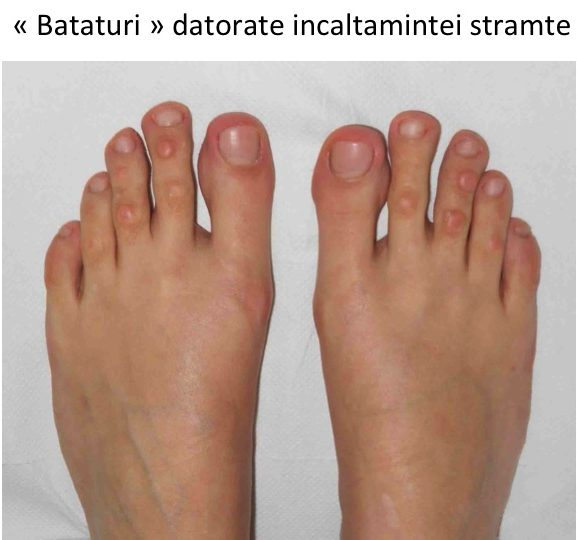 unguente pentru tratamentul artritei degetelor de la picioare